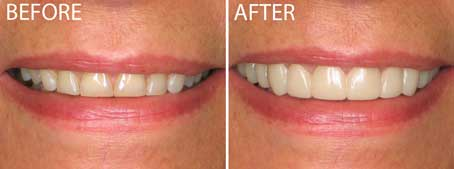 veneer-summit-smiles-dentist-2