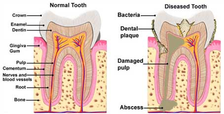 Root Canal Therapy | Summit Smiles LLC