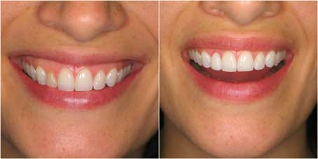 veneer-summit-smiles-dentist