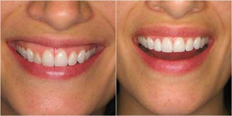 veneer-summit-smiles-dentist