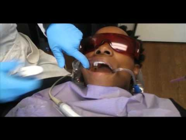 Dr. Mariam removes original material from tooth